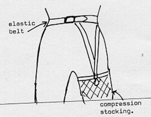 a6d13e9d69e Suspender Belt for Compression Stockings - Independent Living ...